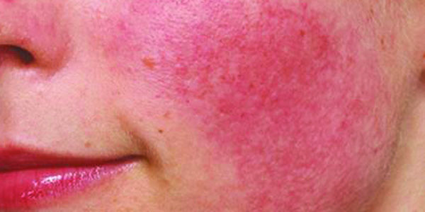 What You Are Getting Wrong About Your Inflamed Skin.